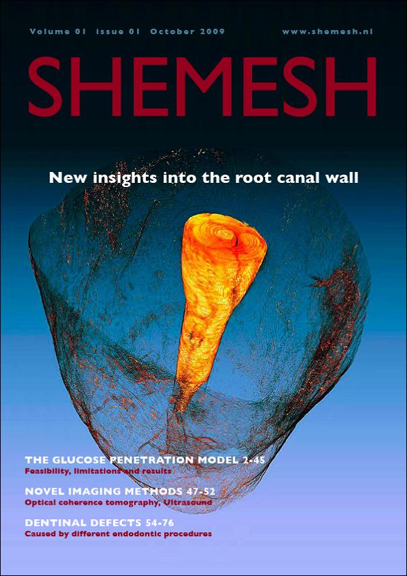 Shamesh New insights into the root canal wall